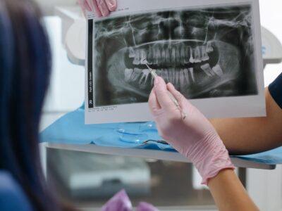 Incrementa la necesidad de implantes y endodoncias en las revisiones dentales según Dental Company